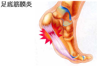 足底筋膜炎之鞋墊處理