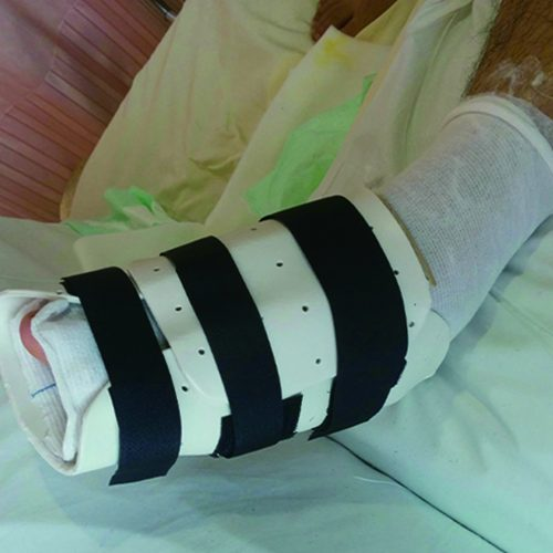 Forefoot or Midfoot Fracture Brace