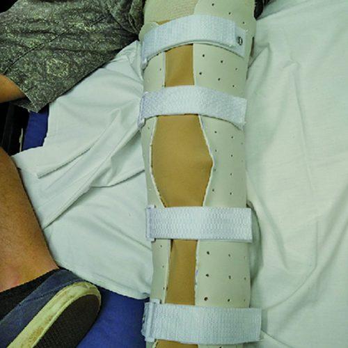 Post-Op Knee Extensin Splint
