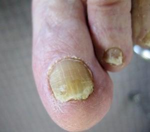 長者足部皮膚及趾甲護理