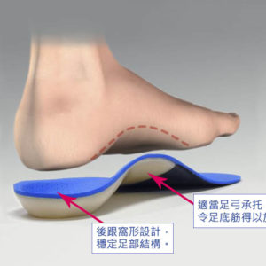 Caption: The MASS orthotic design directly fills the full contour of the corrected MLA position, acting as a spring 'dampener' of pronation